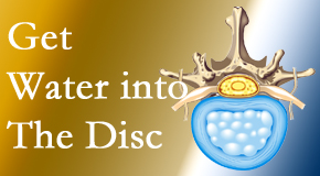 Back And Neck Care Center uses spinal manipulation and exercise to enhance the diffusion of water into the disc which supports the health of the disc.