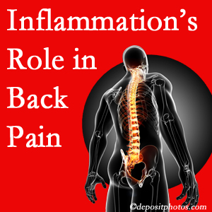 The role of inflammation in Severna Park back pain is real. Chiropractic care can help.