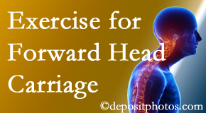 Severna Park chiropractic treatment of forward head carriage is two-fold: manipulation and exercise.