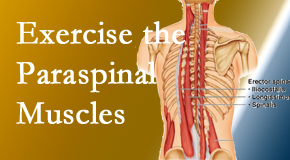 Back And Neck Care Center describes the importance of paraspinal muscles and their strength for Severna Park back pain relief.