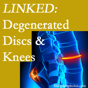 Degenerated discs and degenerated knees are not such unlikely companions. They are seen to be related. Severna Park patients with a loss of disc height due to disc degeneration often also have knee pain related to degeneration.